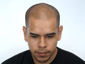 covid 19 cause hair loss