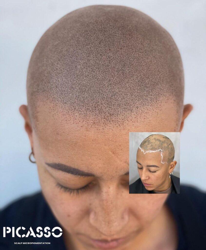 Alopecia Scalp Micripigmentation Hair Loss Solution Woman Austin Texas Los Angeles Chicago(1)