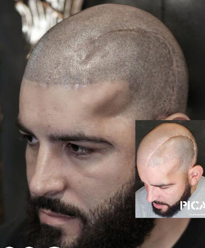 Hair Transplant Scars Scalp Micripigmentation Hair Loss Solution Woman Austin Texas Los Angeles Chicago(1)