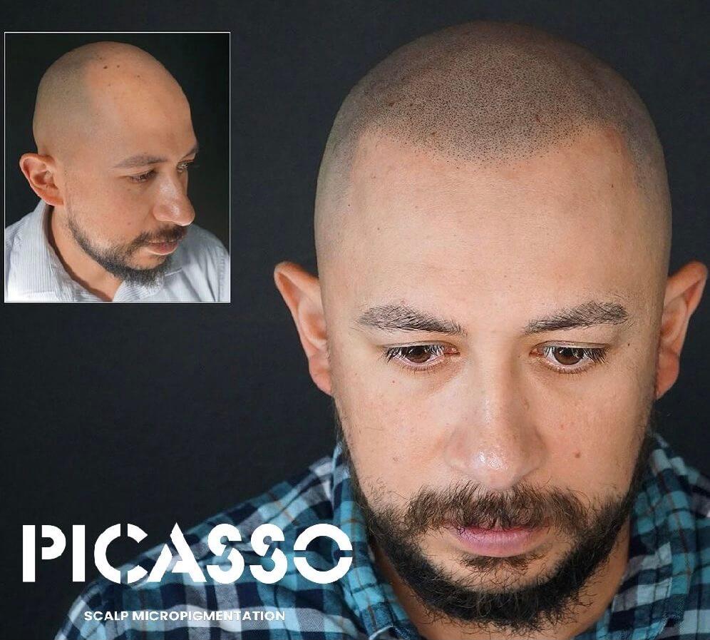 scalp-micropigmentaion-austin-texas-hair-tattoo-review-scalpp-bravi-ink-scalp-goddess-scalpp.