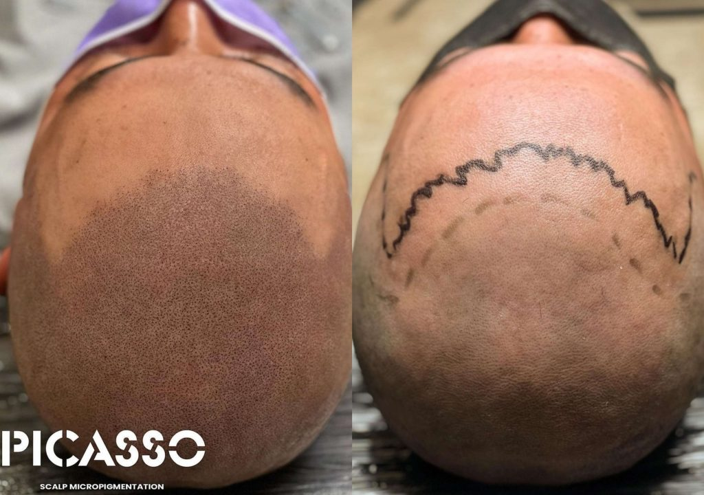 scalp-micropigmentaion-austin-texas-hair-tattoo-review-scalpp-bravi-ink-scalp-goddess-scalpp.41